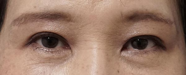 自然な目の上のたるみとり|眉下切開 1か月後のAfterの写真
