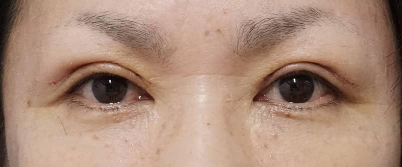 全切開、眼瞼下垂 1週間後、1ヶ月後のAfterの写真