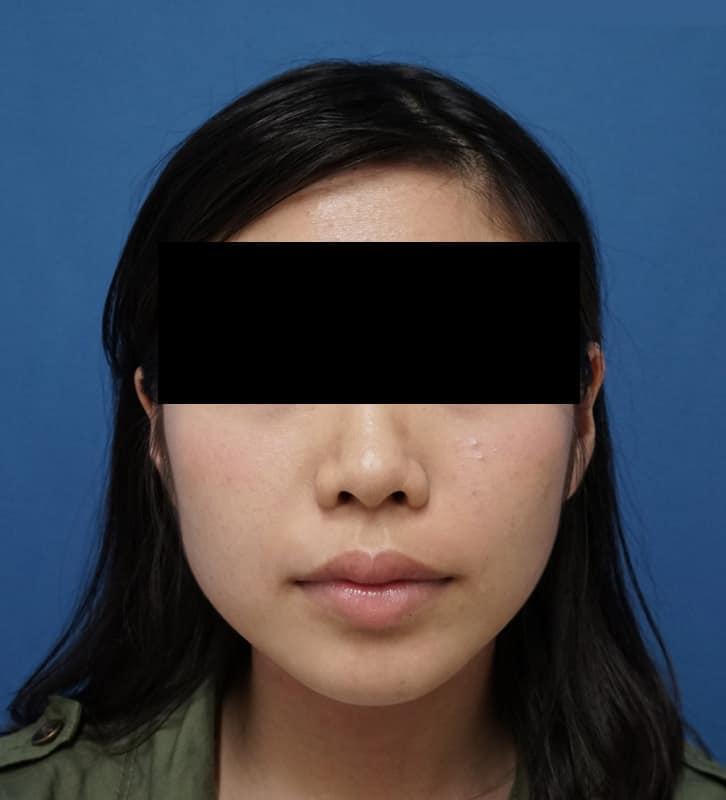 アラガン社超強力小顔ボトックス 1ヶ月後のBefore写真