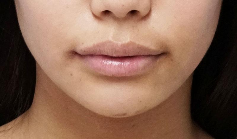 口角を上げるセット 1週間後のAfterの写真