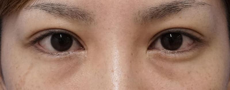 他院抜糸(8点)、もとびアイゴールド、厚み取り 手術前⇒1ヶ月後のAfterの写真