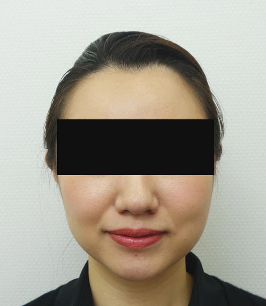 強力小顔ボトックス 3週間後のAfterの写真