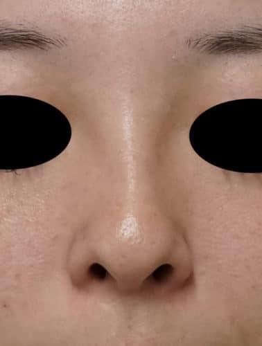 他院ヒアルロン酸後のクレヴィエル(鼻) 施術直後のBefore写真