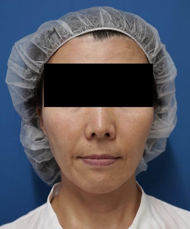 腫れずにしっかりたるみ解消|ミントリフトミニ 1週間後のBefore写真