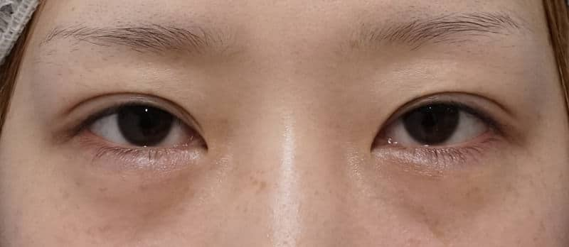 切らない眼瞼下垂 7ヶ月後のBefore写真