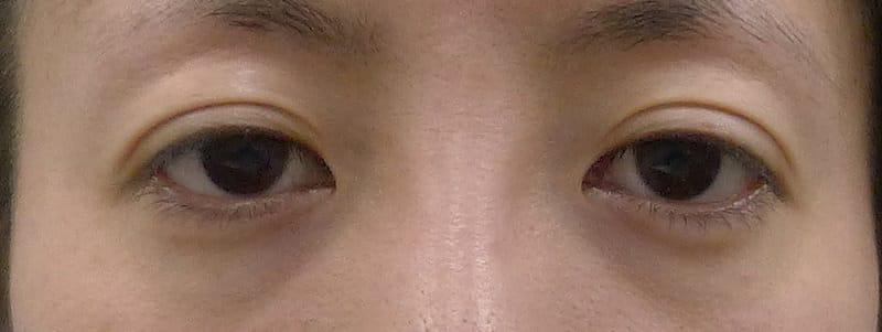 切らずに眠たい目を明るく|切らない眼瞼下垂 1か月後のBefore写真