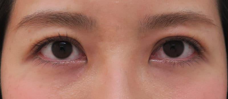 切らずに簡単にデカ目に! 切らない眼瞼下垂プレミアム(眼瞼下垂の改善と同時に二重に) 1週間後のAfterの写真
