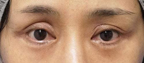 眼瞼下垂手術後⇒他院手術⇒修正手術 3ヶ月後のBefore写真
