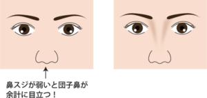 鼻スジが弱い団子鼻が目立つイメージ