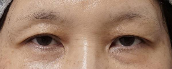 自然な目の上のたるみとり|眉下切開 1か月後のBefore写真