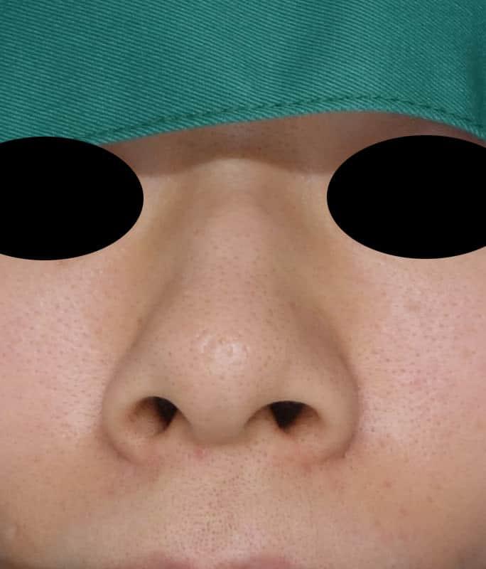 鼻中隔延長、隆鼻術、小鼻縮小(flap法)の手術直後のBefore写真
