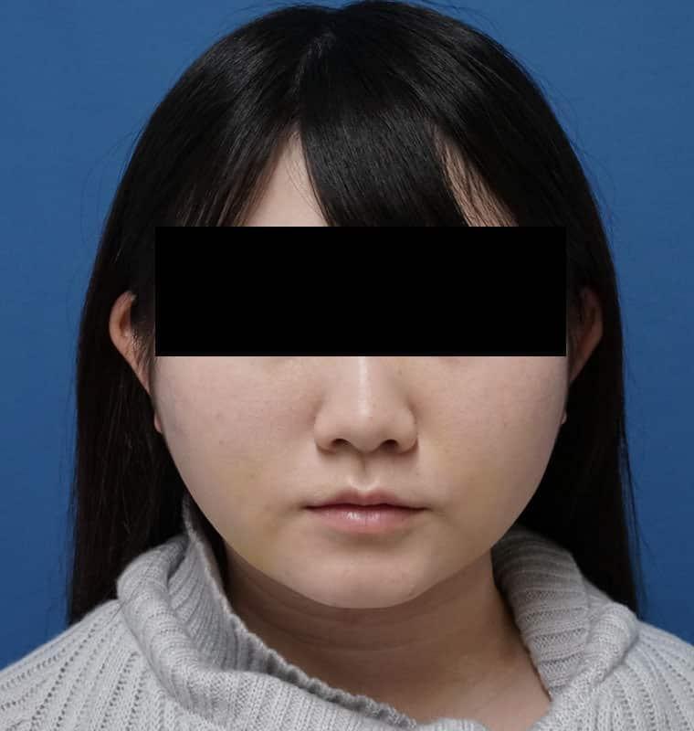 美容外科スタッフさんのフェイスライン脂肪吸引 1週間後のAfterの写真