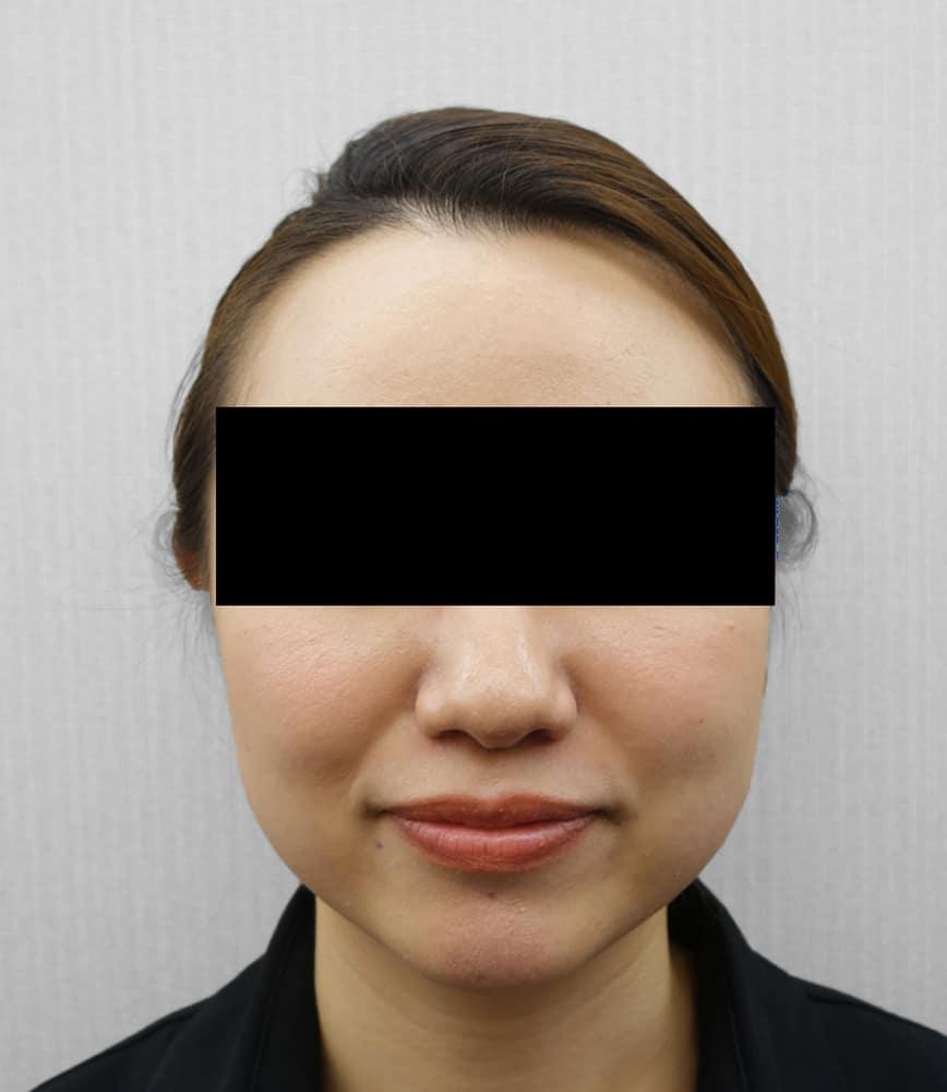 強力小顔ボトックス 3週間後のBefore写真
