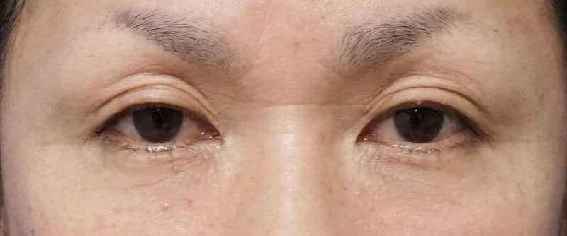 全切開、眼瞼下垂 1週間後、1ヶ月後のBefore写真
