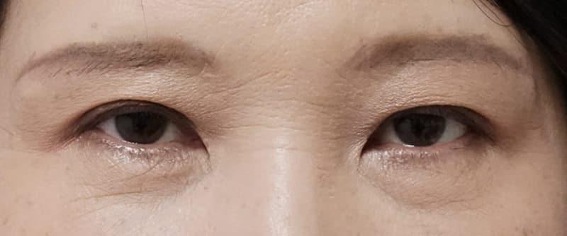 自然な目の上の若返り 眉下切開 3ヶ月後のAfterの写真