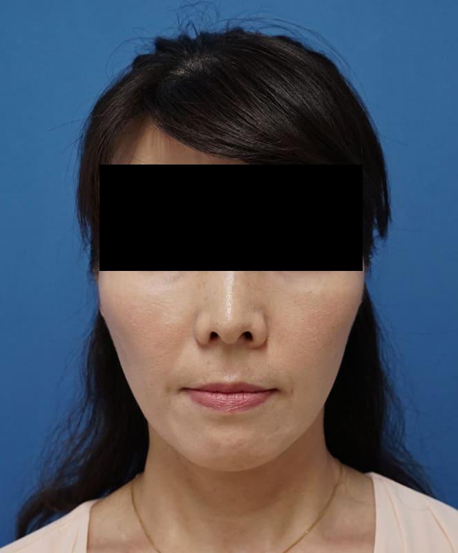 腫れずにしっかりたるみ解消|ミントリフトミニ 1週間後のAfterの写真