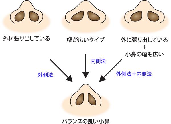 タイプ別鼻翼縮小の種類