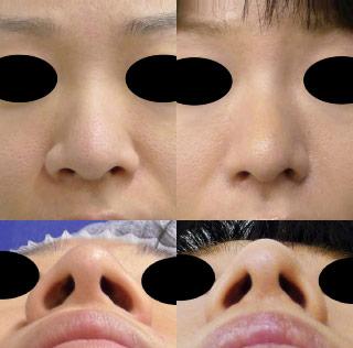 小鼻を小さく-処置前後-flap法-外側法