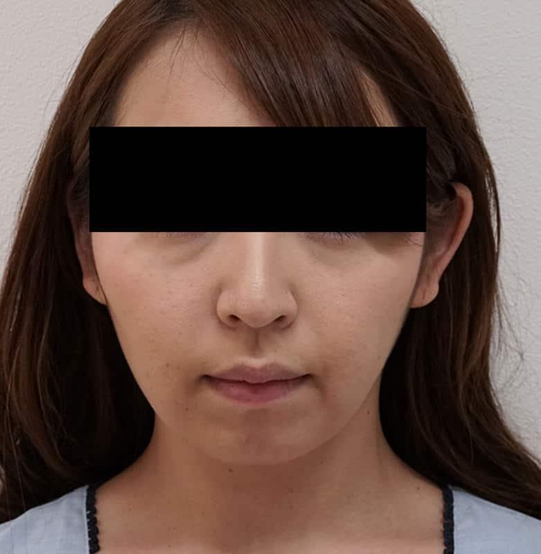 切らずに超強力な小顔効果!切らない強力小顔3点セット 1ヶ月後のAfterの写真