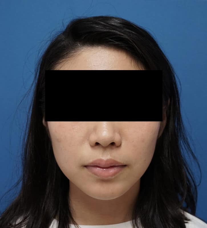 アラガン社超強力小顔ボトックス 1ヶ月後のAfterの写真