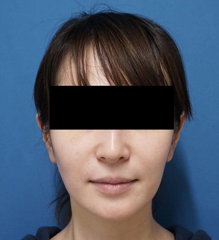 腫れずにしっかりリフトアップ|ミントリフトミニ 手術直後のBefore写真