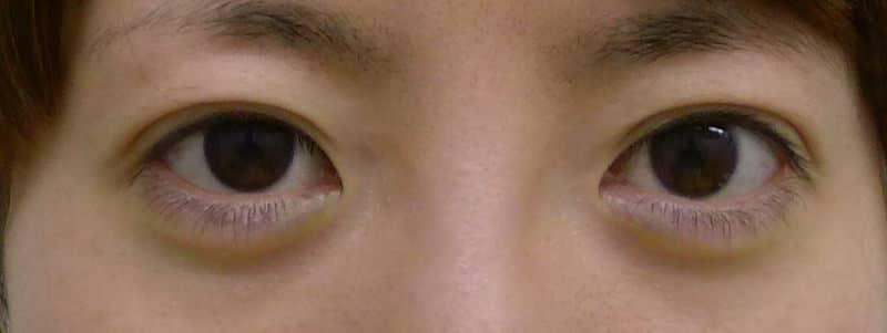 切らずに眠たい目を明るく|切らない眼瞼下垂 1か月後のAfterの写真