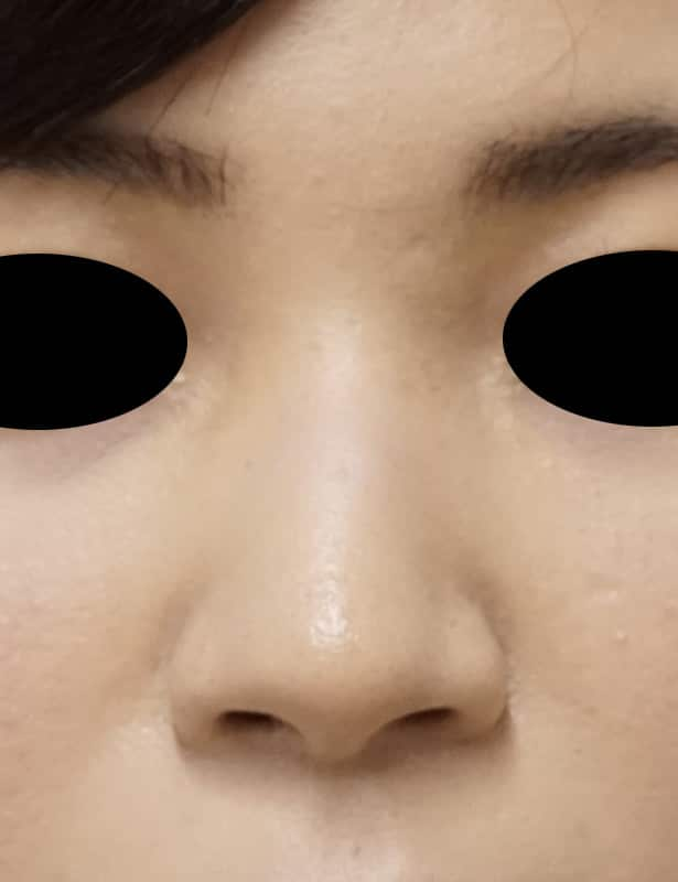 高濃度ヒアルロン酸(クレヴィエル) 鼻・アゴ 処置直後のBefore写真