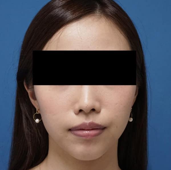 簡単小顔注射 BNLS(ホホ) 1回終了後のAfterの写真