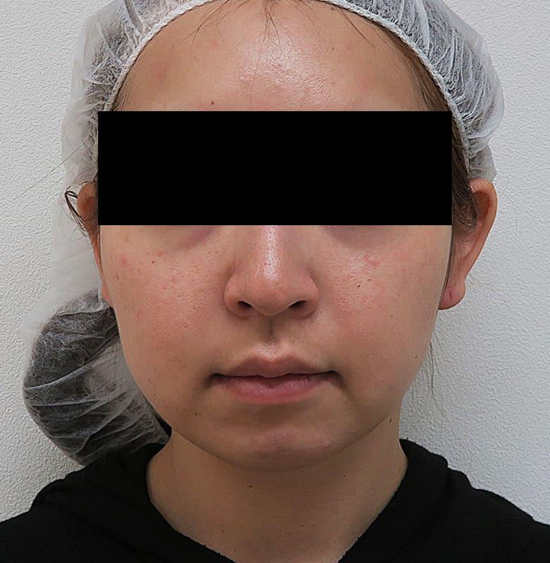 切らずに超強力な小顔効果!切らない強力小顔3点セット 1ヶ月後のBefore写真