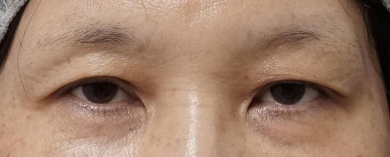 自然な目の上の若返り 眉下切開 3ヶ月後のBefore写真