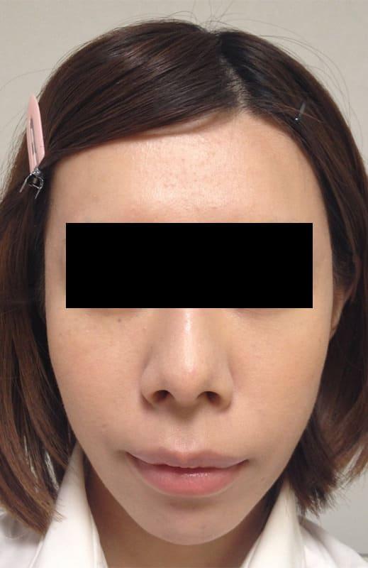 お顔を卵形に美しく!脂肪注入(ゴルゴ・ホホ・こめかみ)1か月後のAfterの写真