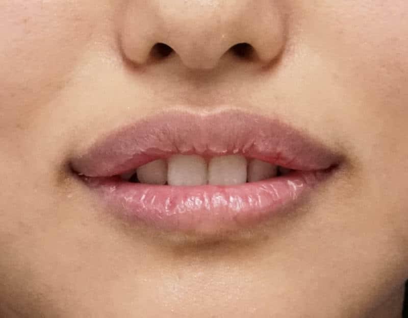 口角を上げるヒアルロン酸(アヒル口に) 処置直後のAfterの写真