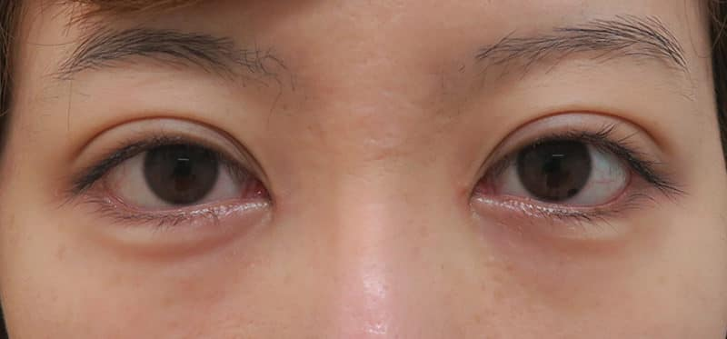 下眼瞼下制(たれ目術) 1ヶ月後のAfterの写真