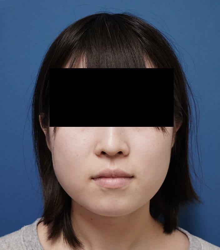 アラガン強力小顔ボトックス 1か月後のBefore写真