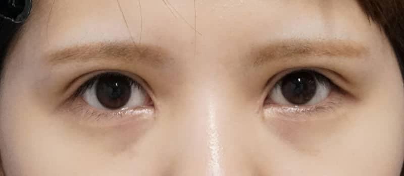 二重全切開、眼瞼下垂、目頭切開(Z形成) 1ヶ月後のAfterの写真