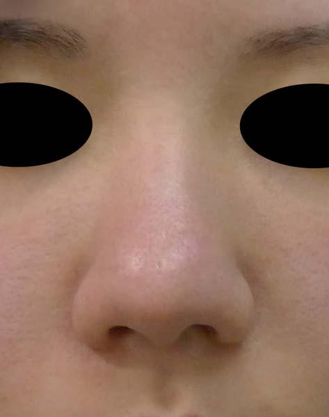 団子鼻をすっきり 鼻尖形成(3D法) 1か月後のBefore写真