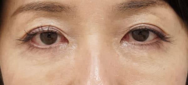 目の下のプチ若返り|ベビーコラーゲン療法 1週間後のBefore写真