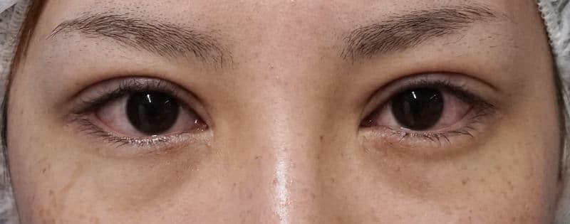 抜糸8点、脂肪・眼輪筋除去、広めの埋没法 手術直後の腫れは??のAfterの写真