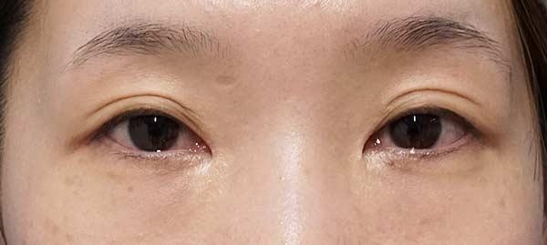 タレ目形成(下眼瞼下制)、目尻切開、目の下脂肪取り 2か月後のBefore写真