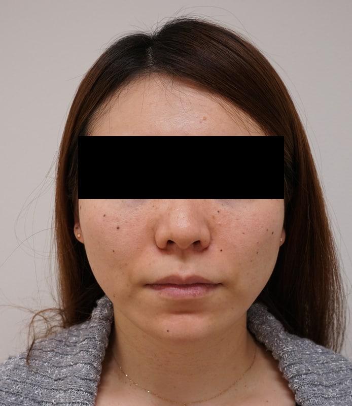 驚きの小顔治療!|エラボトックス 1か月後のBefore写真