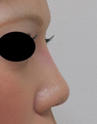 高めのお鼻プロテーゼ 1週間後のAfterの写真