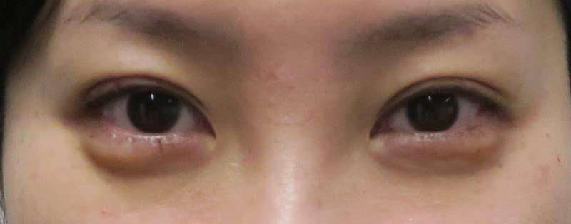 他院抜糸(8点)+もとびアイプラチナム 手術直後のAfterの写真