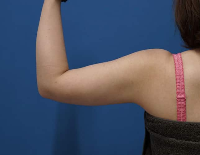 美容外科スタッフさんの二の腕・肩脂肪吸引 1ヶ月後のAfterの写真