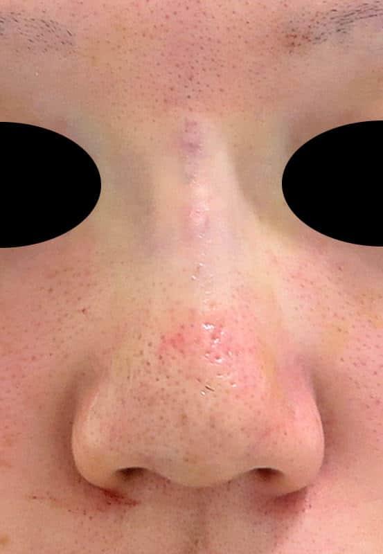 実はそんなに腫れない!? 鼻のプロテーゼ(隆鼻術)の手術直後のAfterの写真