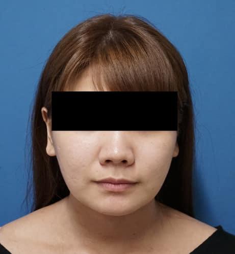 ホホ・アゴ脂肪吸引、アラガン強力小顔ボトックス  3ヶ月後のAfterの写真