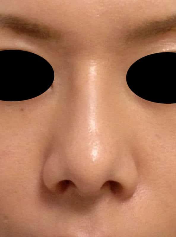鼻中隔延長、I型プロテーゼ、小鼻縮小(flap法)の1か月後のAfterの写真