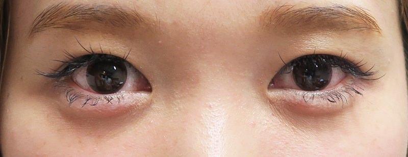 自然です!涙袋のヒアルロン酸 処置直後のAfterの写真