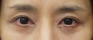 眼瞼下垂手術後⇒他院手術⇒修正手術 3ヶ月後