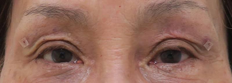 かなりのくぼみ目に脂肪注入 手術直後のAfterの写真