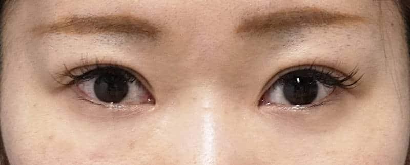 全切開、眼瞼下垂、目頭切開(Z形成) 3か月後のAfterの写真